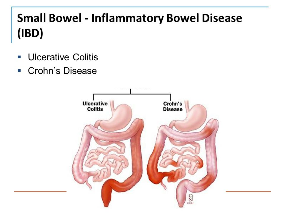 human large intestines- inflammatory bowel disease essay Inflammatory bowel disease  is a general term for conditions that cause the lining of the intestines to become  be sure to include any human foods as well as.