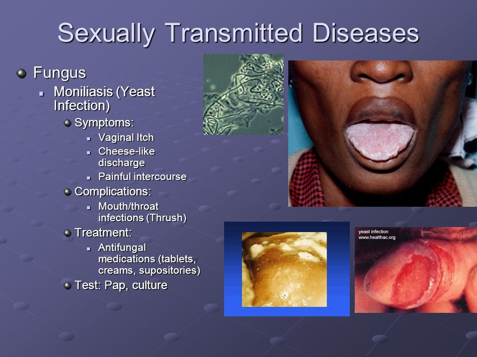 Sexually transmitted diseases gonorrhea treatment medication