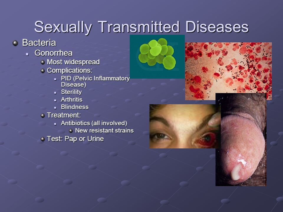 All sexually transmitted disease photos