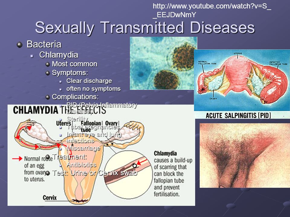 Youtube sexually transmitted disease
