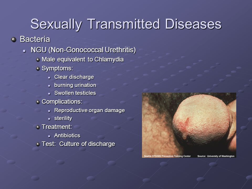 Non sexually transmitted penile discharge