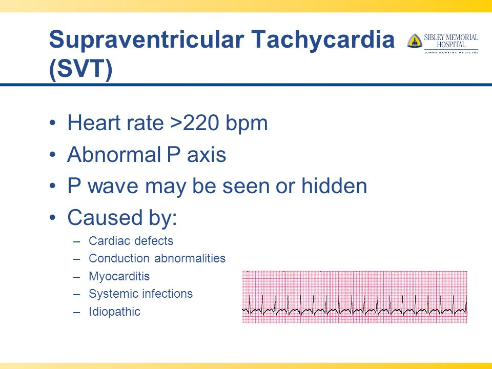 SCN EKG Review and Strip - ppt video online download