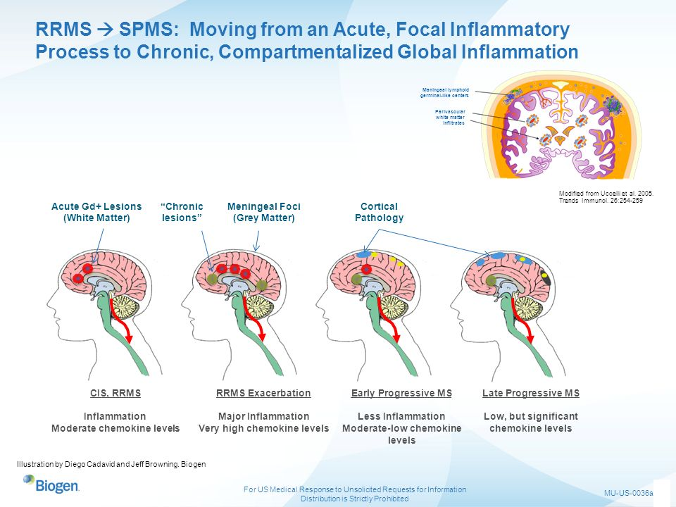 RRMS  SPMS: Moving from an Acute, Focal Inflammatory Process to Chronic, Compartmentalized Global Inflammation