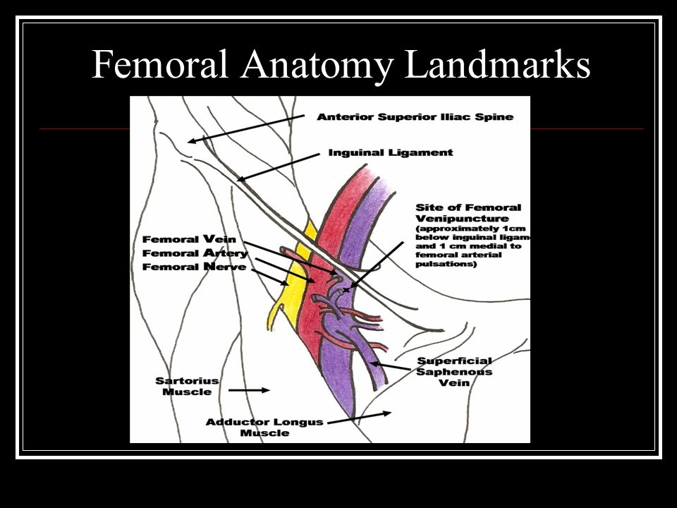 Central Venous Access Office Of Graduate Medical Education Ppt