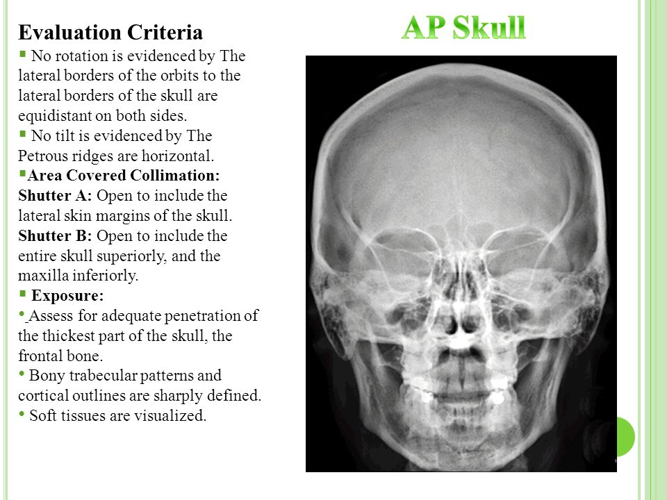 Radiographic Technique – II - ppt video online download