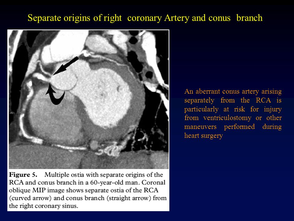Coronary Anatomy. - ppt video online download