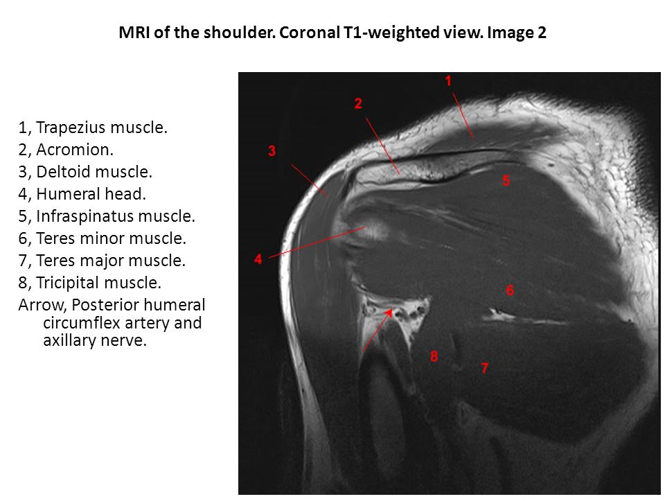 Shoulder Osteology X-ray Muscles CT/MRI. - ppt video online download