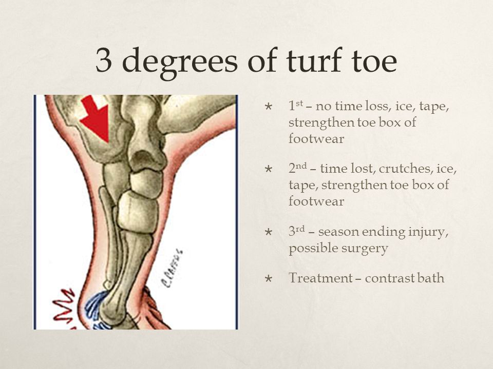 Foot and Ankle Injuries - ppt download