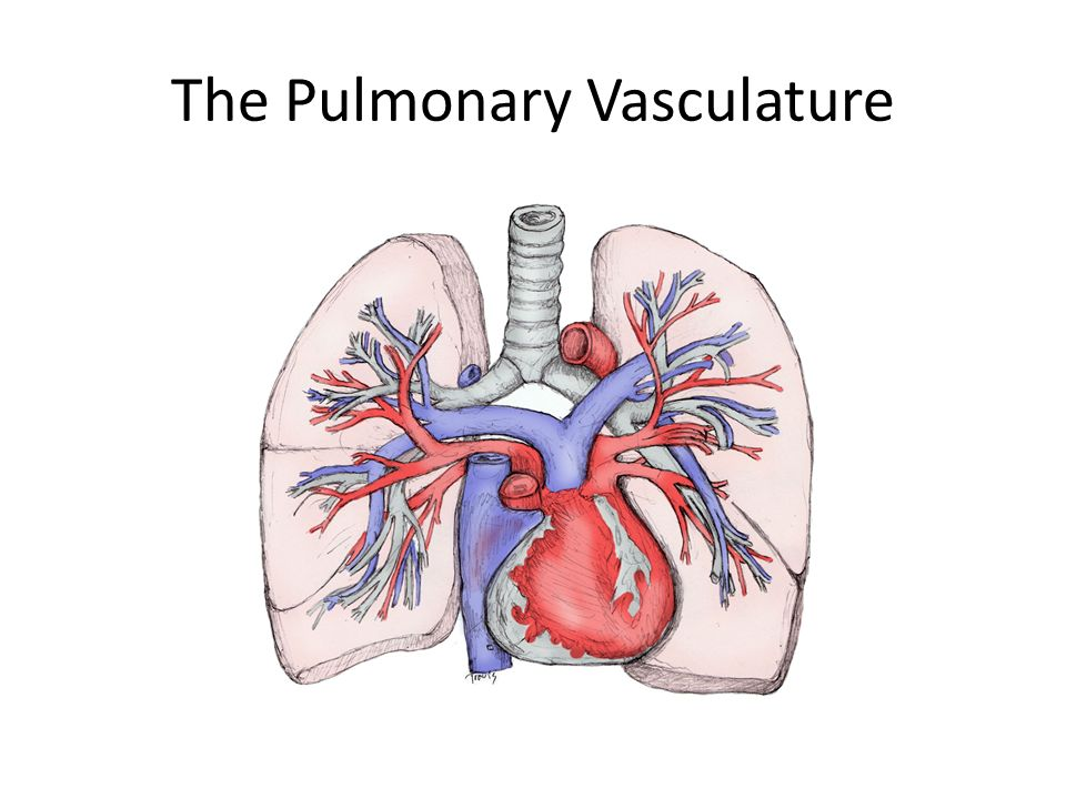 Acute Respiratory Distress Syndrome Ppt Download