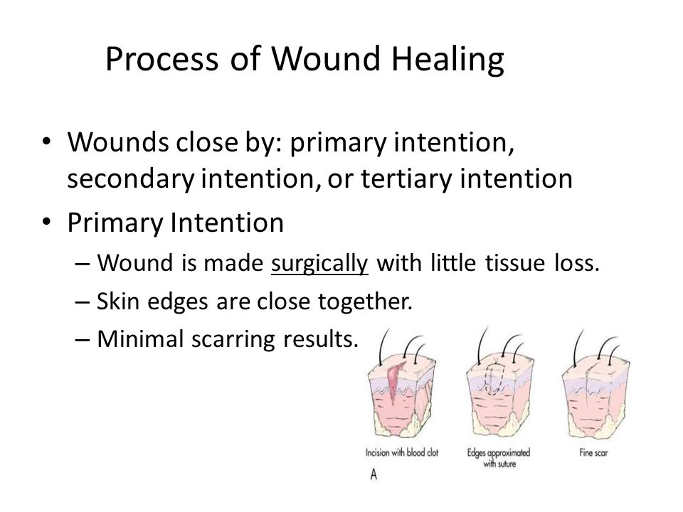 open wound care antibiotic treatment amp healing time - 960×720