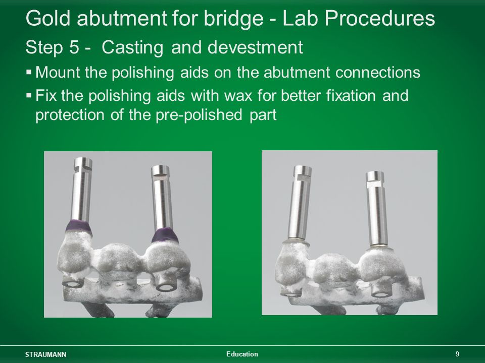 Gold Abutment for bridge - ppt video online download