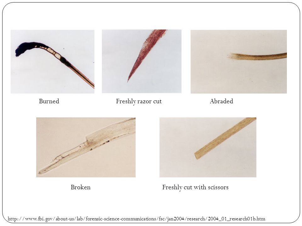 Intro To Hair Analysis Forensic Science 3 13 Ppt Download