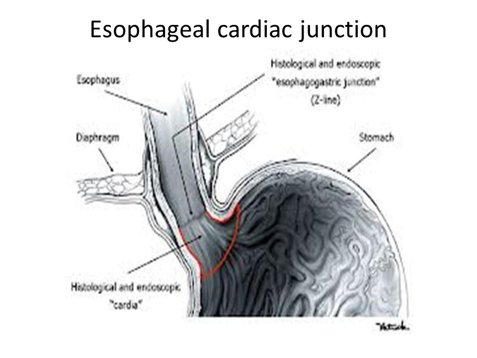 HISTOLOGY OF ESOPHAGUS &gastro esophageal junction - ppt video ...