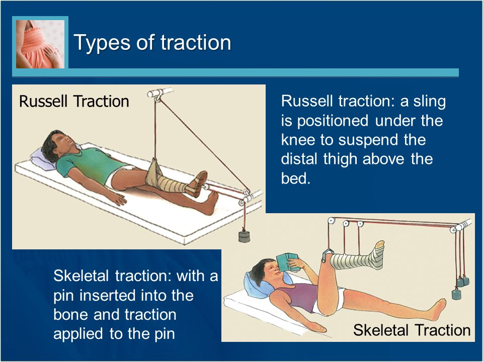 russells traction nursing care