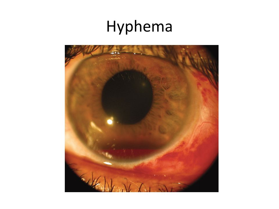 hyphema pictures dr abdullah al amri ophthalmology consultant ppt video 8281
