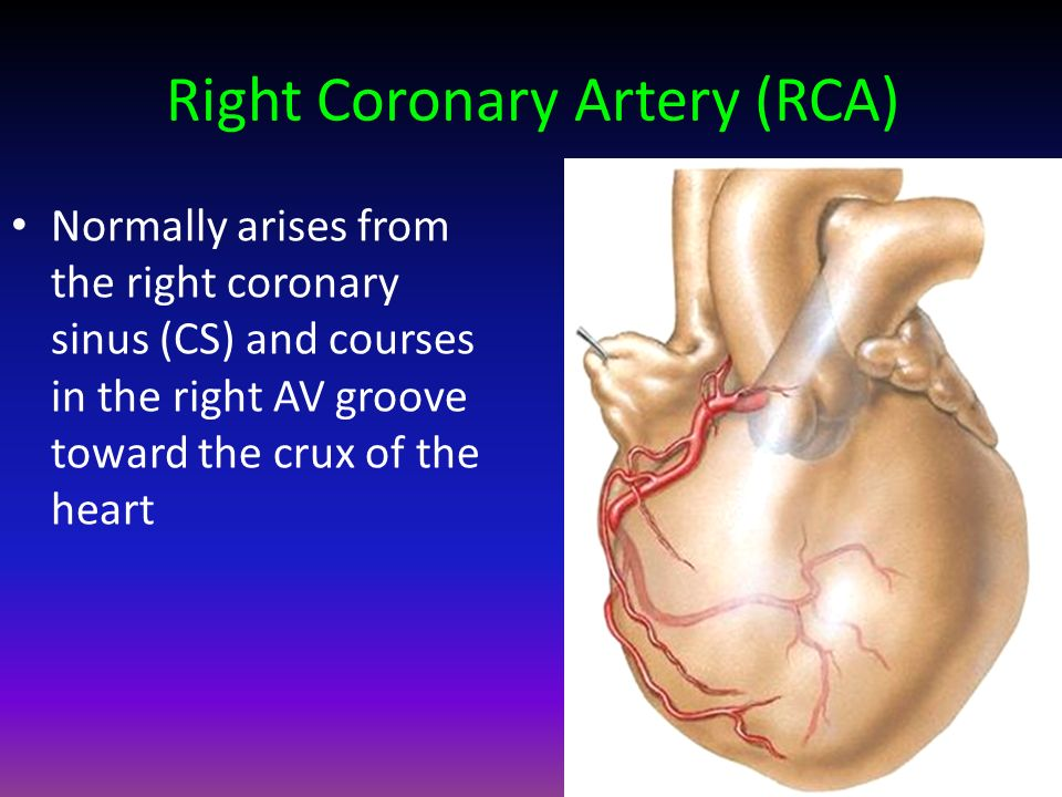 Exelent Right Coronary Anatomy Sketch Human Anatomy Images