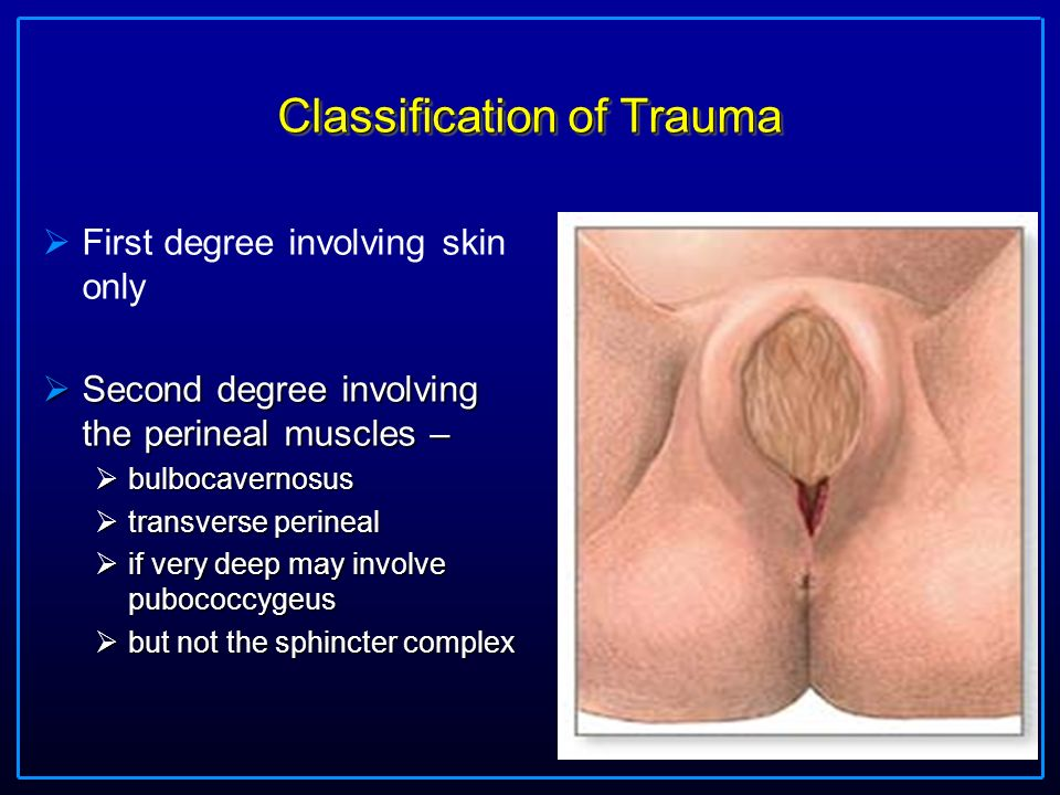 Diagnosis and Repair 2nd degree tears and episiotomy - ppt