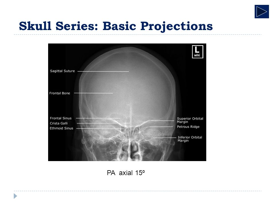 Radiographic Anatomy Skeletal System Skull Radiographic Anatomy