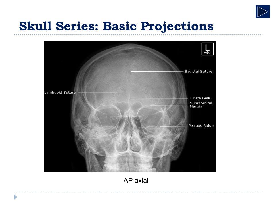 Radiographic Anatomy Skeletal System Skull Radiographic Anatomy