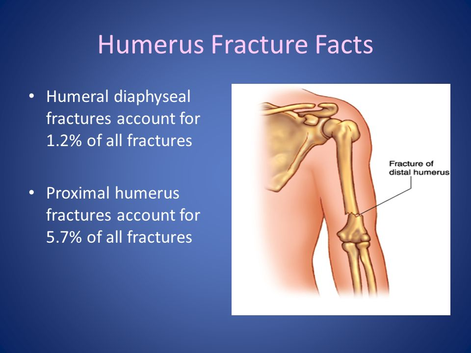 Glenohumeral Dislocations and Humerus Fractures - ppt video online ...