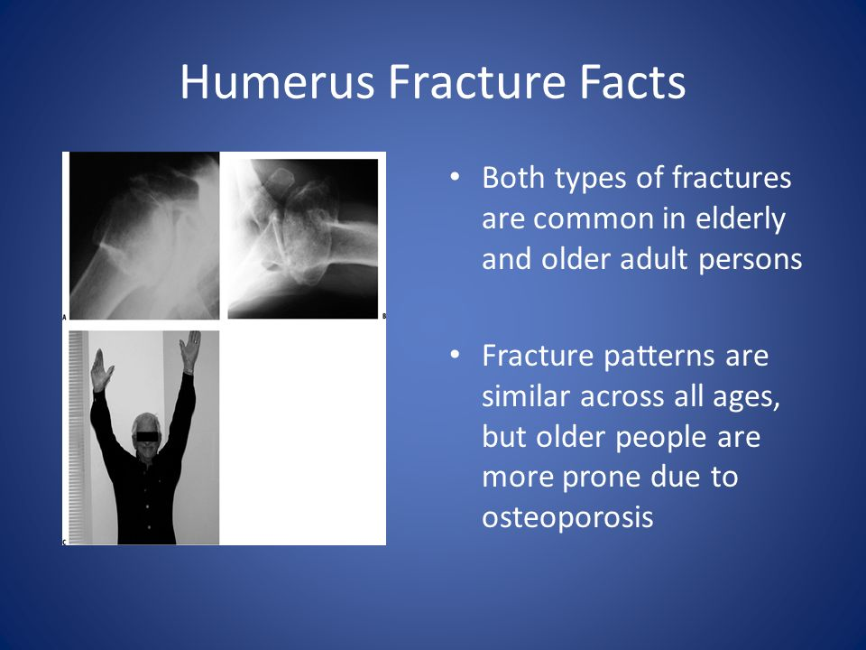 Glenohumeral Dislocations And Humerus Fractures Ppt Video Online