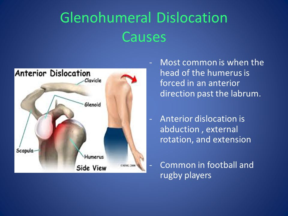 rehabilitation for anterior glenohumeral subluxation Learners will be able to recommend the proper examination procedures for the shoulder instability, describe concepts of the initial management of patients after glenohumeral dislocation or subluxation, and select the proper exercises for both types of glenohumeral instability.