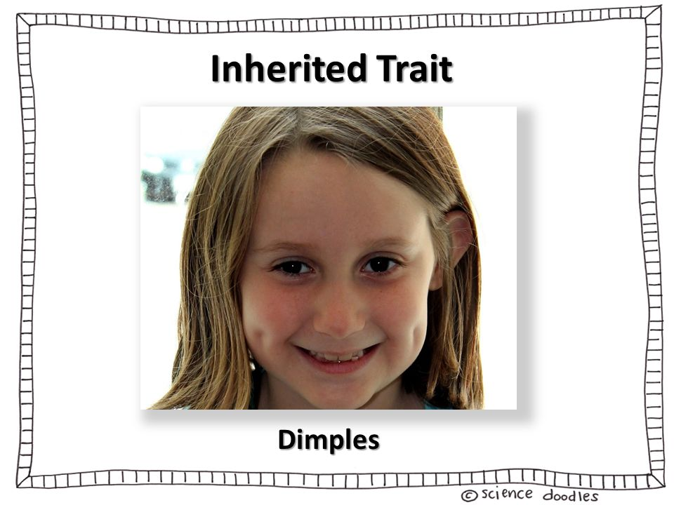 3 Inherited Trait Dimples