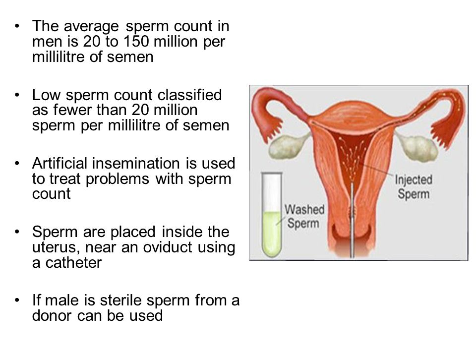 Amazingly! pity, Average count male sperm has analogue?