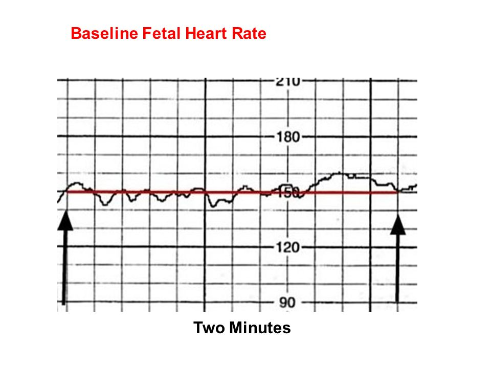 fetal heart rate and defects Fetal alcohol syndrome heart defects may be caused by altered function, not structure researchers at case western university have recently published a research study examining the embryotic development of quail eggs and how prenatal alcohol exposure affects heart formation during the critical stages of development.