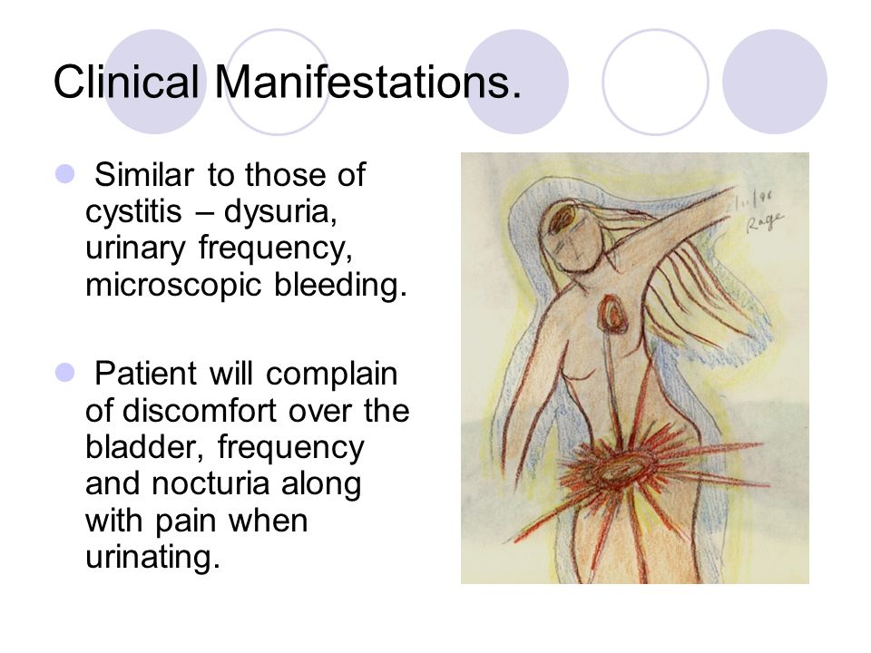 Clinical Manifestations.