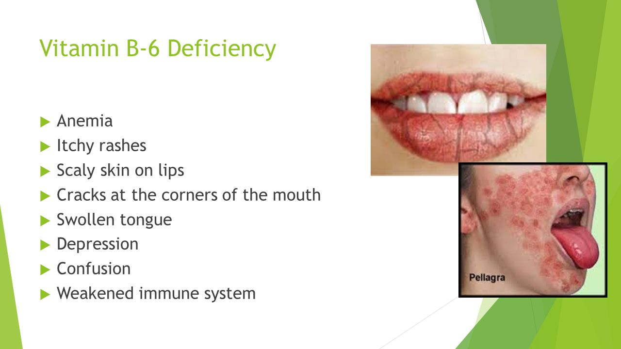 Nutrition Who likes to eat food?. - ppt download B12 Deficiency Skin