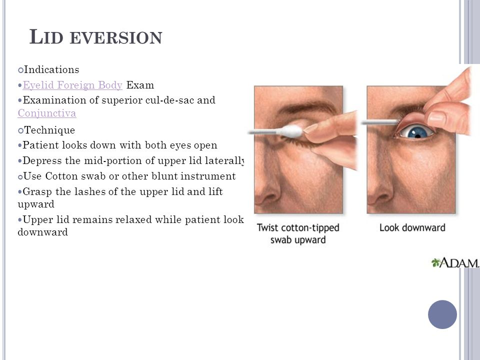 Identifying Structures Of Outer Eye Lid Eversion Eye Swab Eye Patch