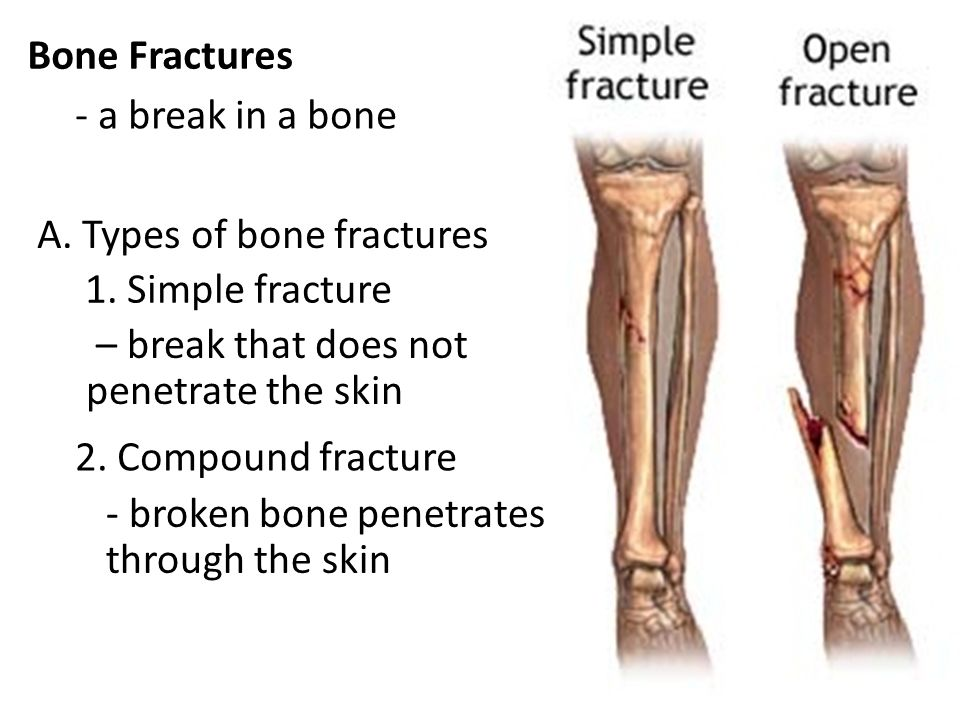 Bone Fractures Name and describe the various types of fractures ...