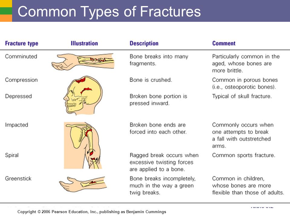 Describe six types of bone fractures - ppt video online download