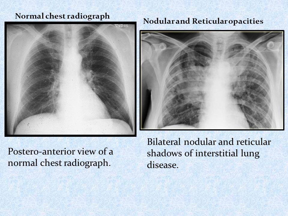 inerstitial lung disease