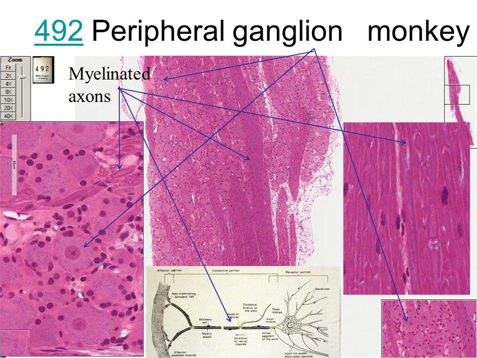 Medical School Histology Basics Peripheral Nerve - ppt video