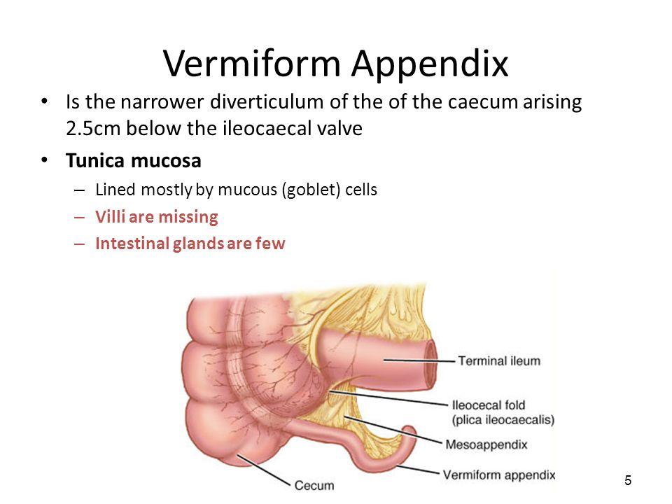 Vermiform
