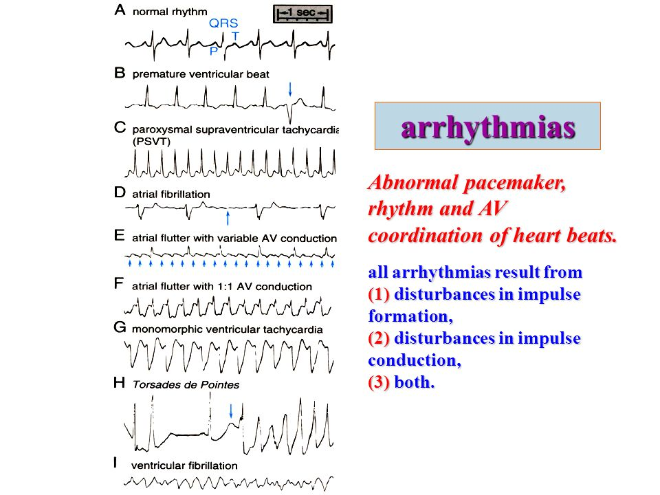 Cardiac Arrhythmia Ppt Video Online Download