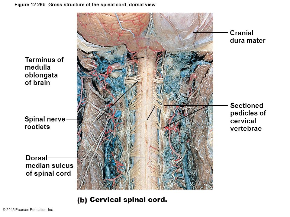Spinal Cord Gross Anatomy And Protection Ppt Video Online Download