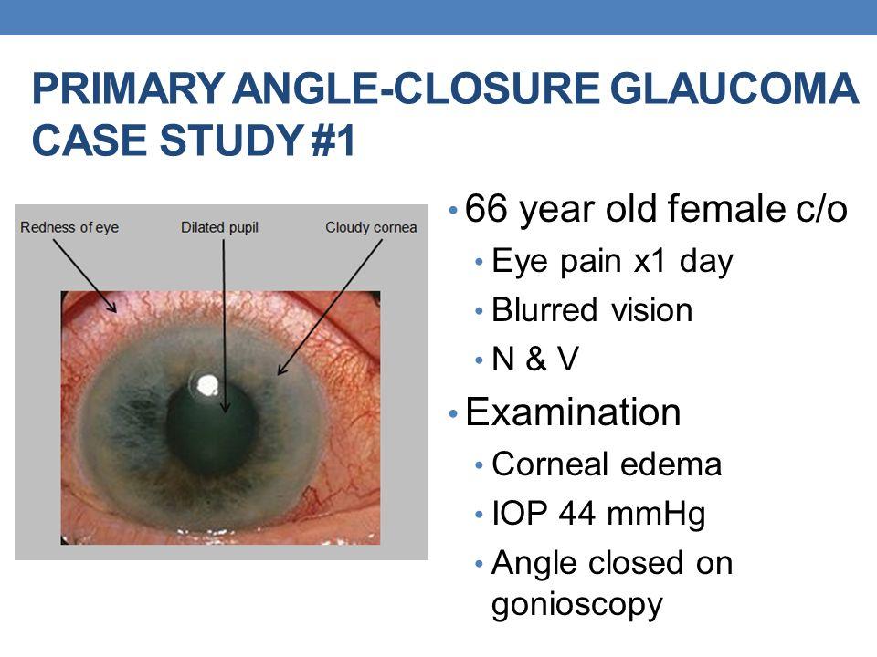 Ooh I Feel Soooooo Sick It Must Be Anal Glaucoma