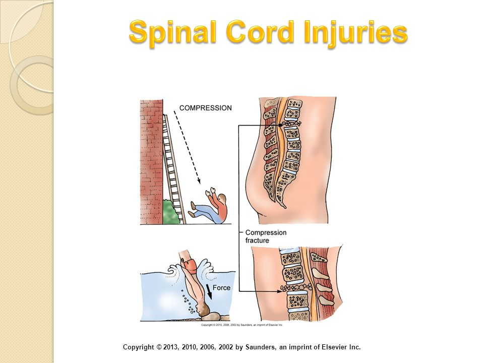 Spinal Cord Injuries Axial loading (vertical compression) injury of the cervical spine and the lumbar spine.