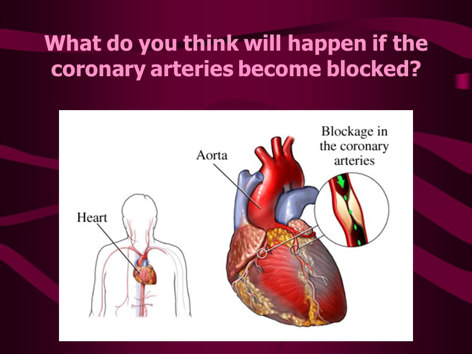 What Is Heart Disease Heart Disease Is Any Disorder That Affects