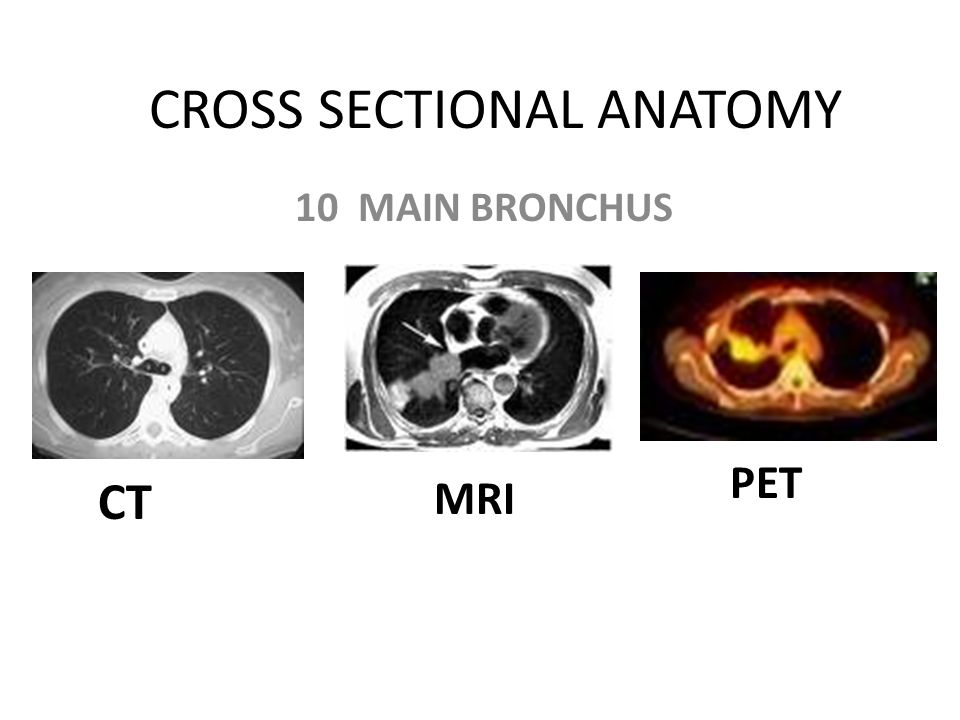 CROSS SECTIONAL ANATOMY - ppt video online download