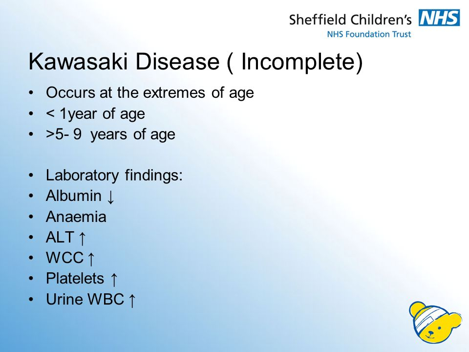 Complete & Incomplete Kawasaki Disease: Two sides of the same coin