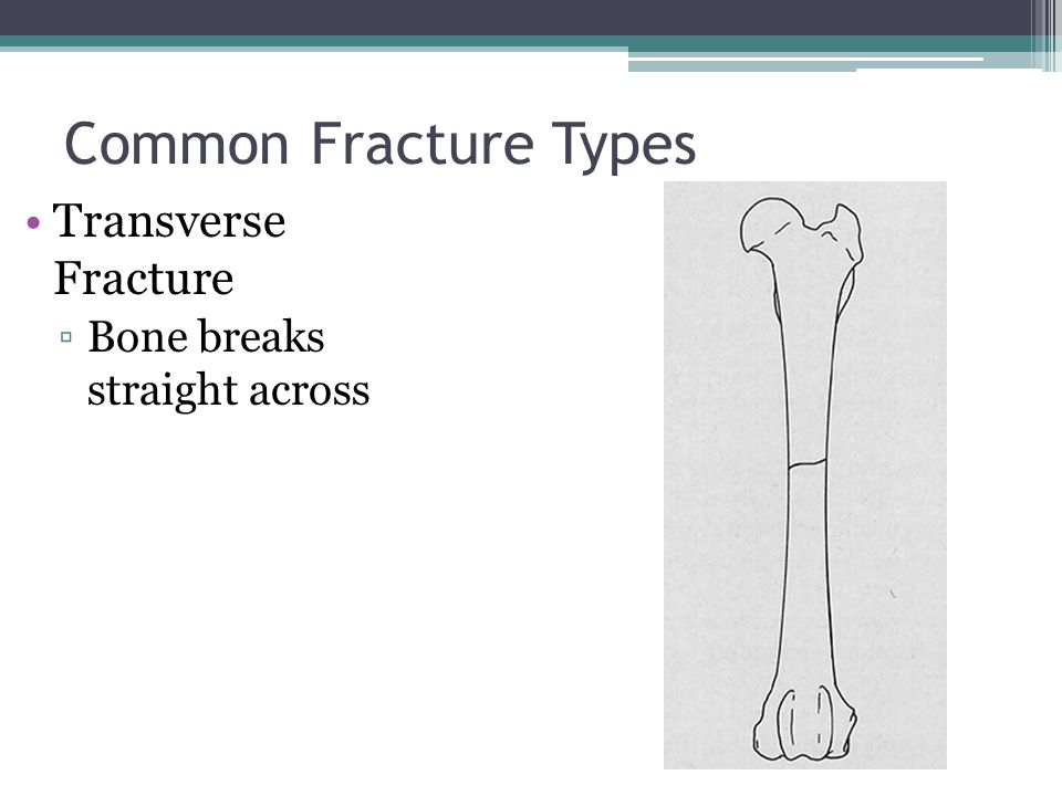 Bone Fractures Anatomy & Physiology. - ppt video online download