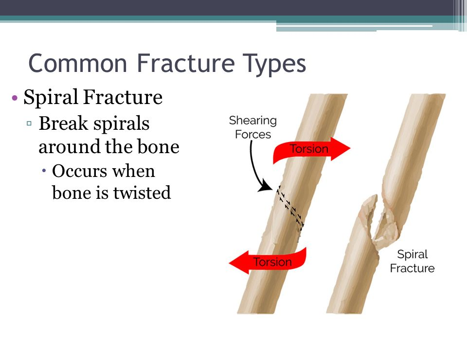 Bone Fractures Anatomy Physiology Ppt Video Online Download