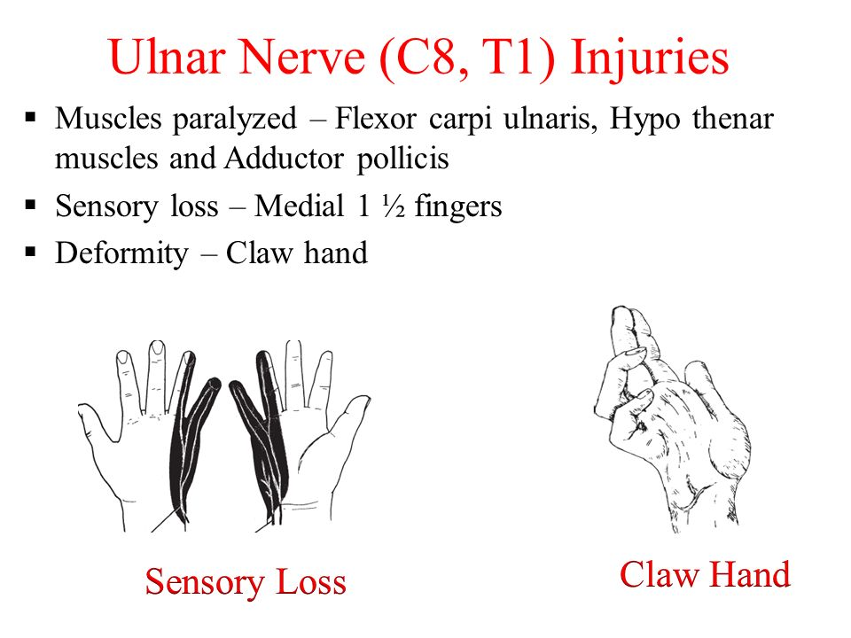 PERIPHERAL NERVE INJURIES - ppt video online download