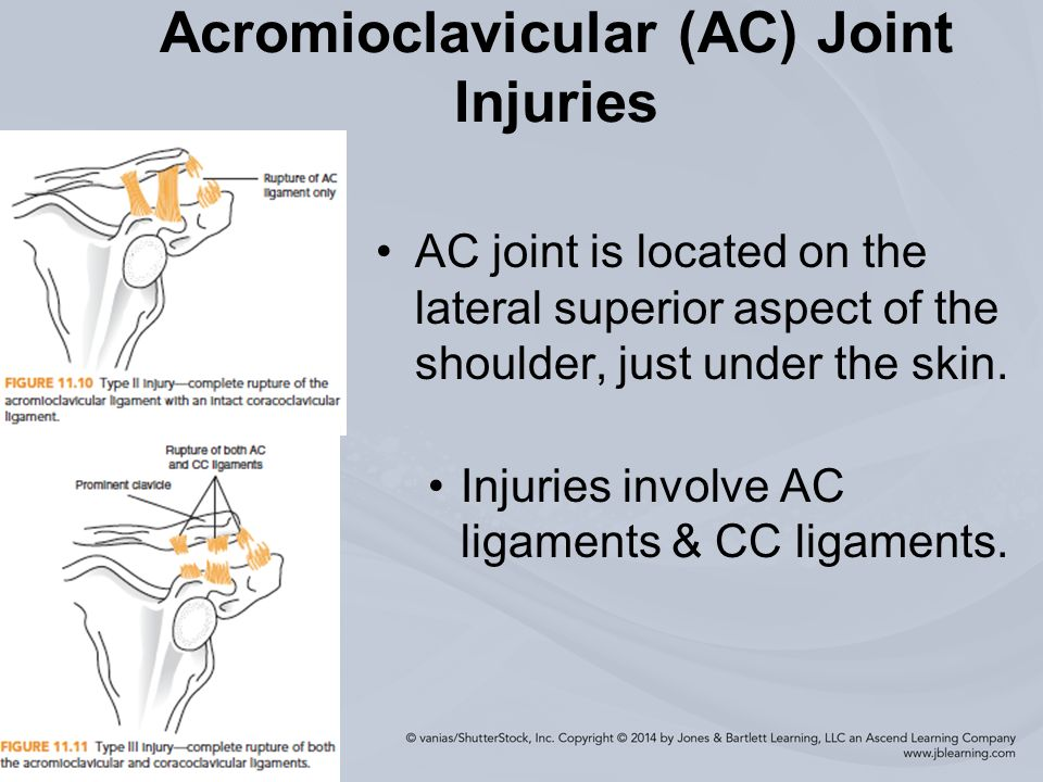 Injuries To The Shoulder Region Ppt Video Online Download