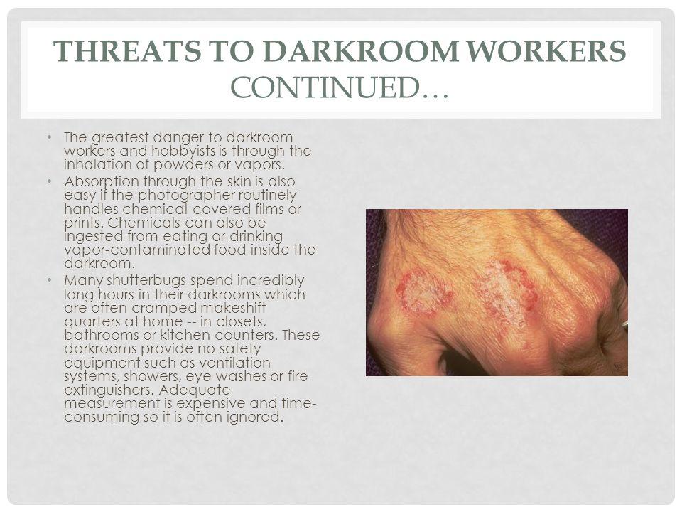 darkroom disease