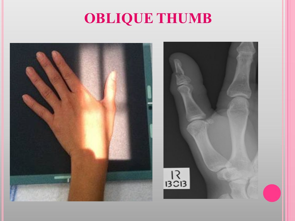 RADIOGRAPHIC TECHNIQUE - I - ppt video online download